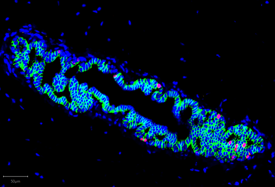 Normal Human Breast Cells Grow in the Mouse Mammary Gland Fluorescence 10X